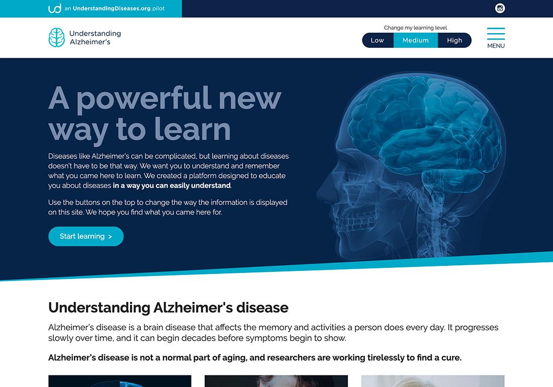 Understanding Diseases: Alzheimer's